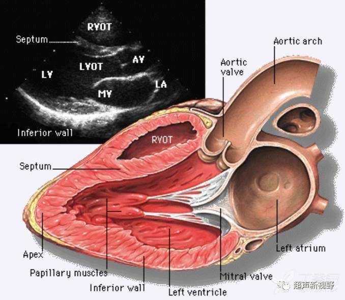 解剖结构: 左室流出道:二尖瓣前叶较窄长,位于前右方接近主动脉根部
