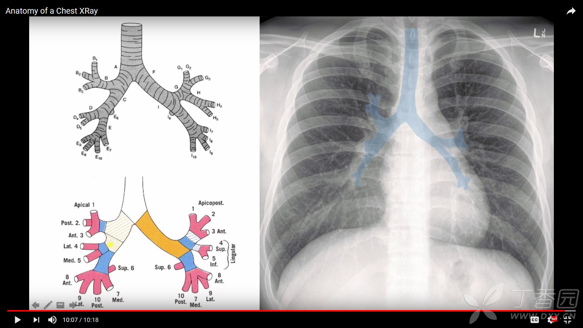 正常胸片颈椎解剖